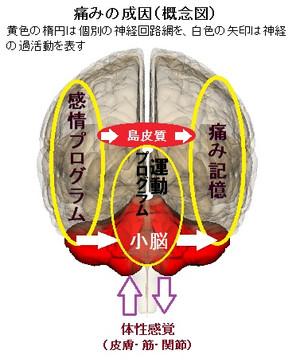 Cerebellum10