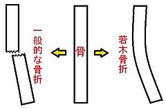 Wakagi1001_3