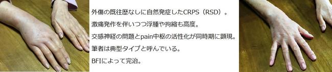 Crp1085_2