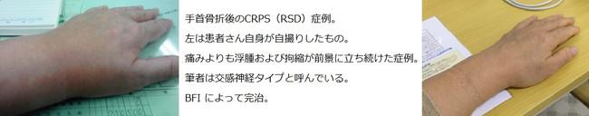 Crps1185_4